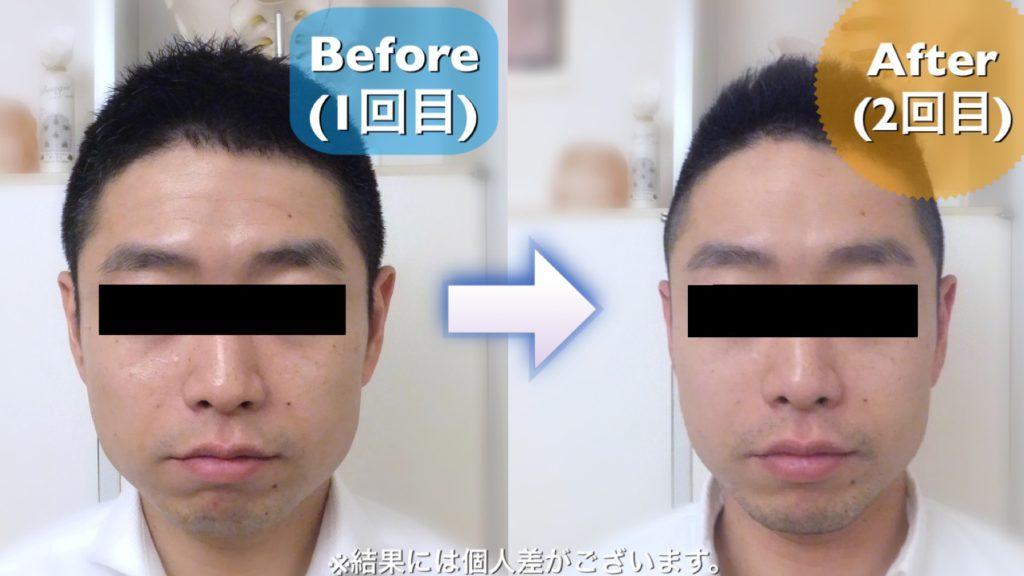 小顔矯正 モニター 2